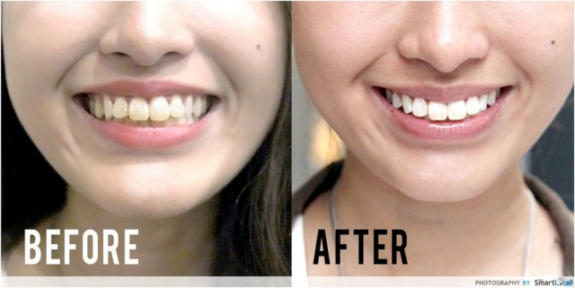 How To Get Whiter Teeth In Less Than An Hour
