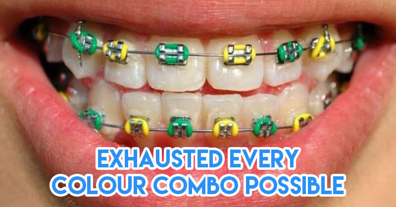limited colour combinations for braces