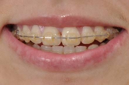 clear braces turn yellow easily