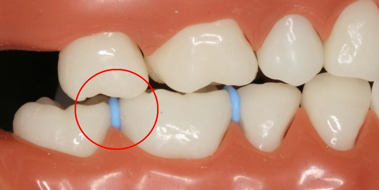 spacers between your teeth for easy extraction of teeth