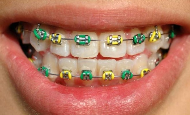 ugly colour combinations for braces