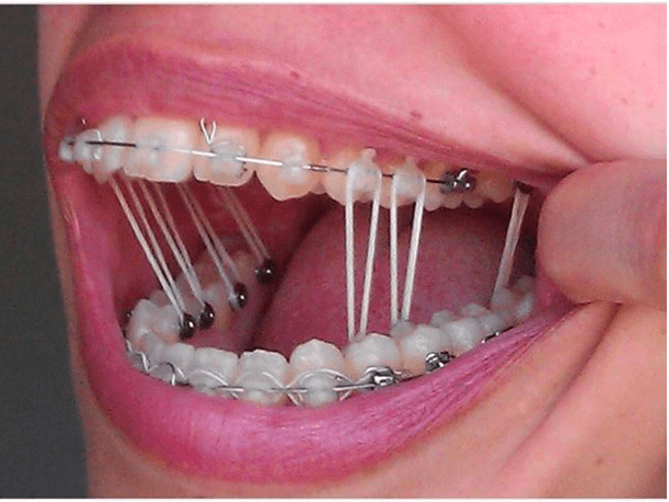 15 must knows about braces for potential metalmouths to survive braces rubber bands changing after every meal solutioingenieria Choice Image