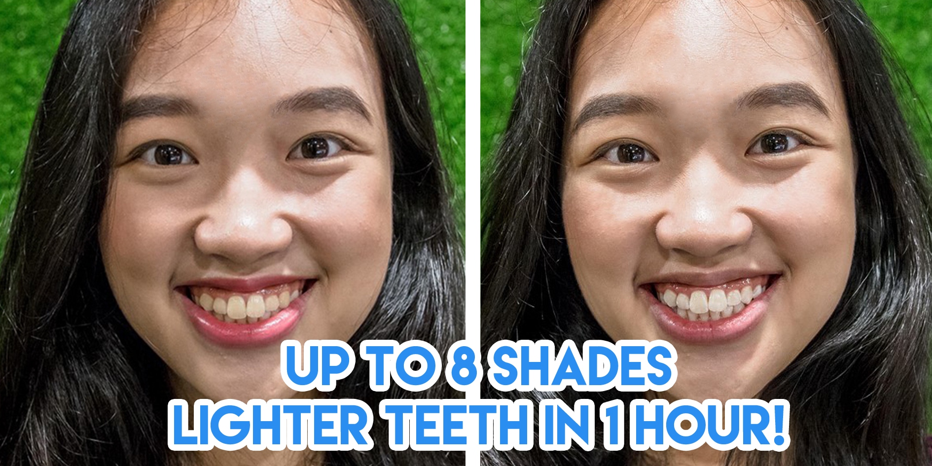 Mirage Aesthetic Teeth Whitening Before After
