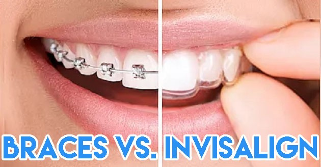 Why Invisalign Treatment Fixes Teeth Better And Steps To
