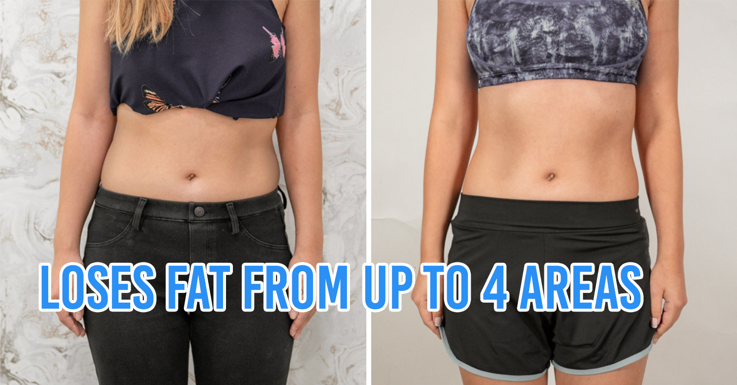 I Tried Fat Freezing To Lose Weight 1 Month Before My Wedding & These Are The Results