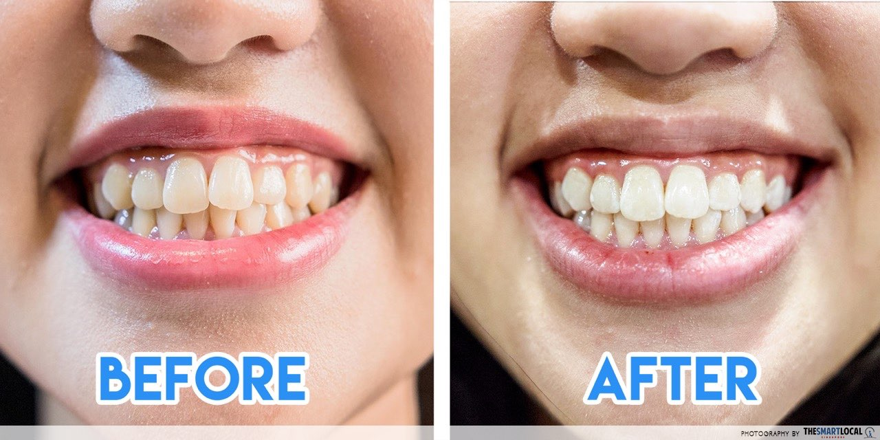 Teeth Whitening Mirage Aesthetic Before After