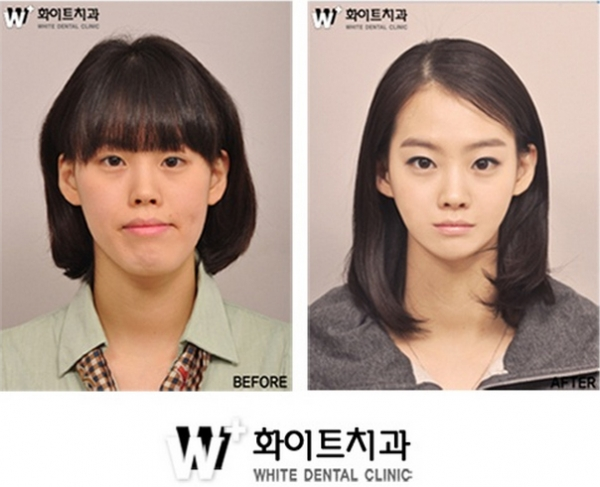 Plastic Surgery in Singapore