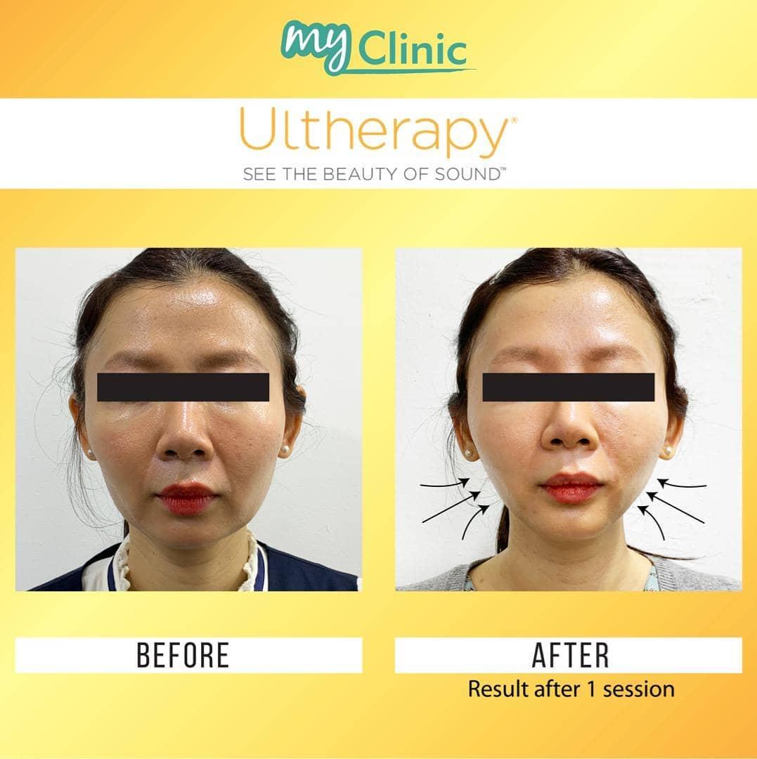 Aesthetic Clinics Klang Valley - MyClinic