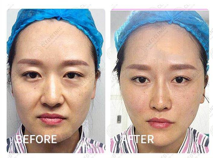 Aesthetic Clinics Klang Valley - CLEO Clinic