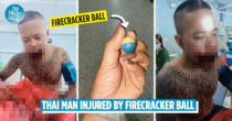 Firecracker Ball Explodes In Ex-Soldier's Mouth, Wanted To Prove His Holy Amulet's Power To Friends
