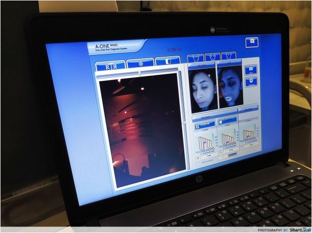 b2ap3_thumbnail_Bioskin-9.JPG