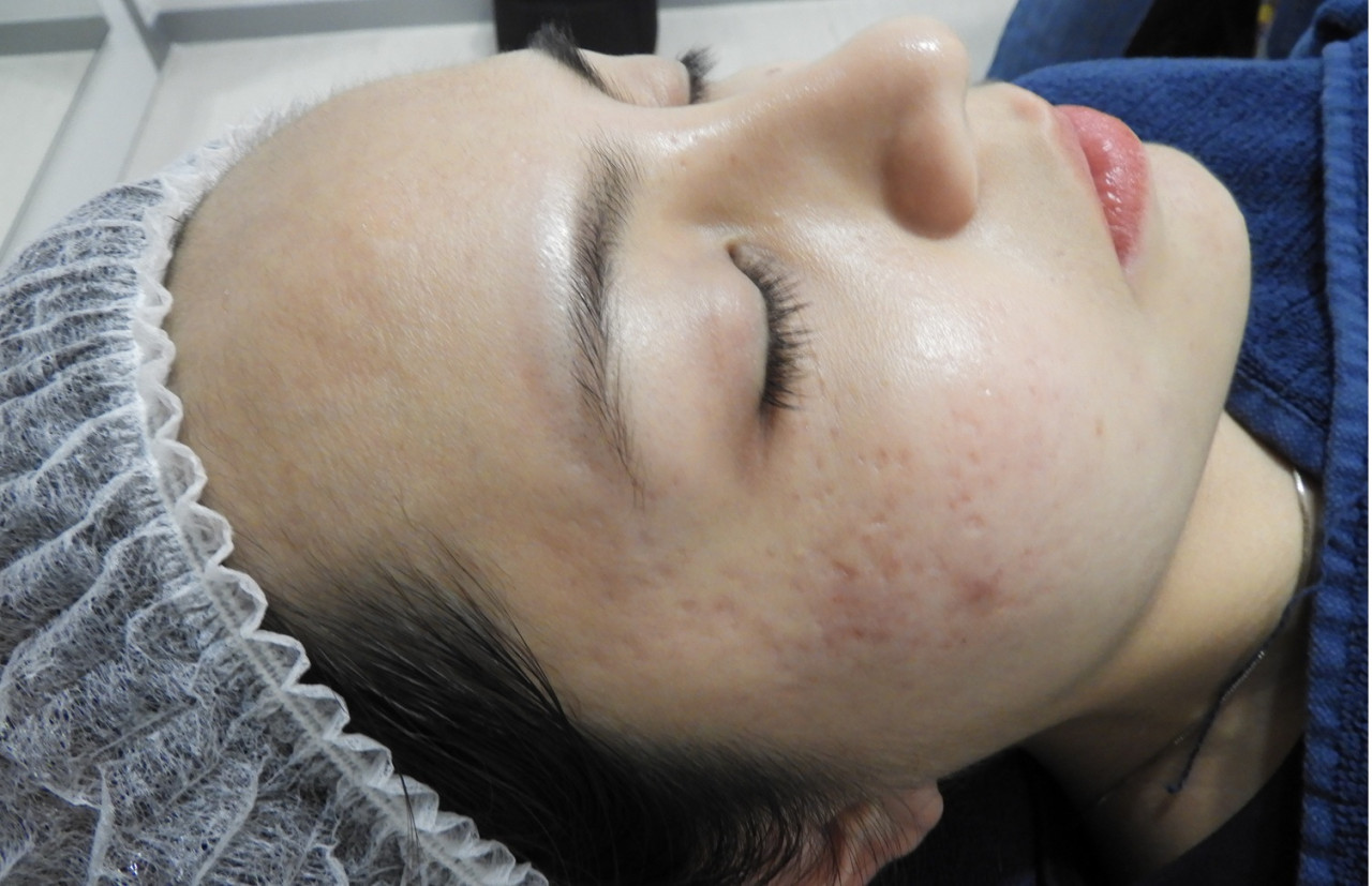 Acne scars - before