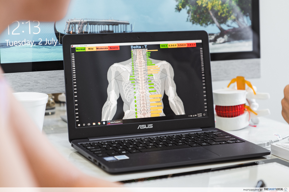 Macquarie Chiropractic Clinic Singapore Spinal Adjustment Thermographic Scan Digital Results