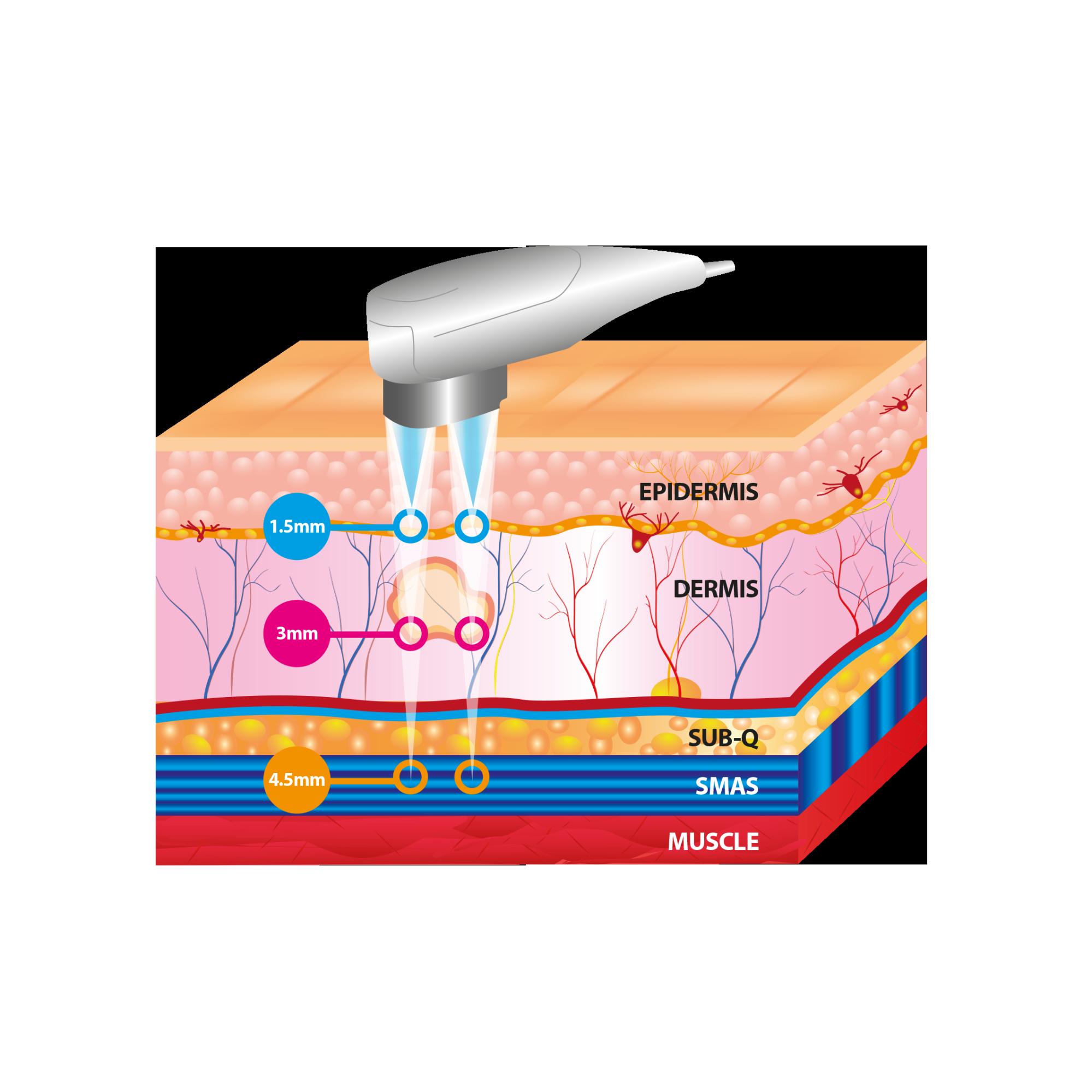 hifu treatment skin layers infographic
