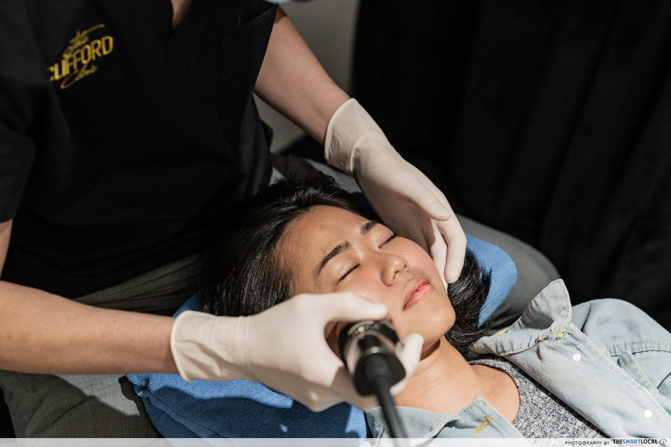 acne scar removal treatment - radiofrequency microneedling