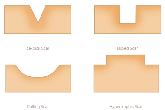 acne scar removal treatment - types of acne scars