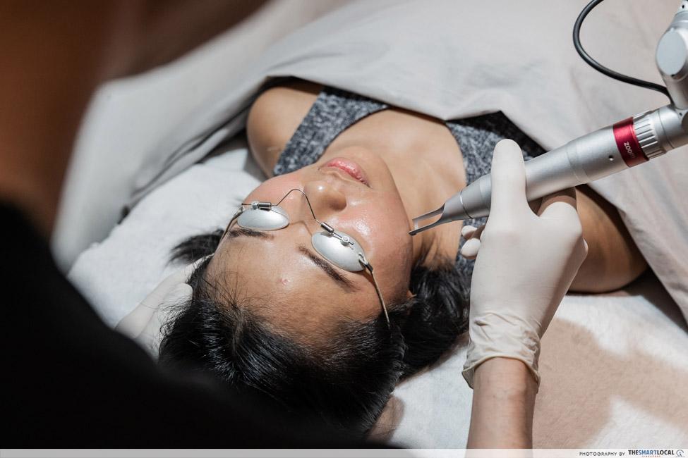 acne scar removal treatment - Pico MLA treatment