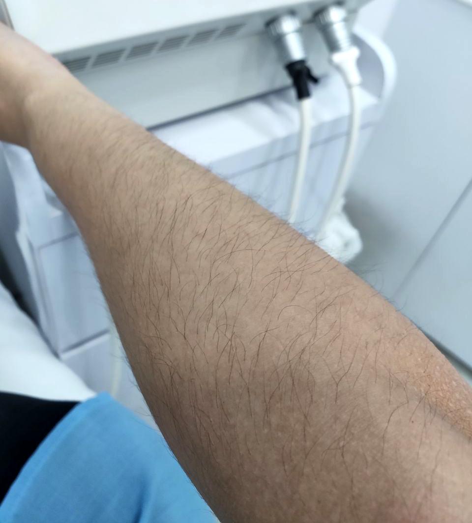 Hairy Arm Female