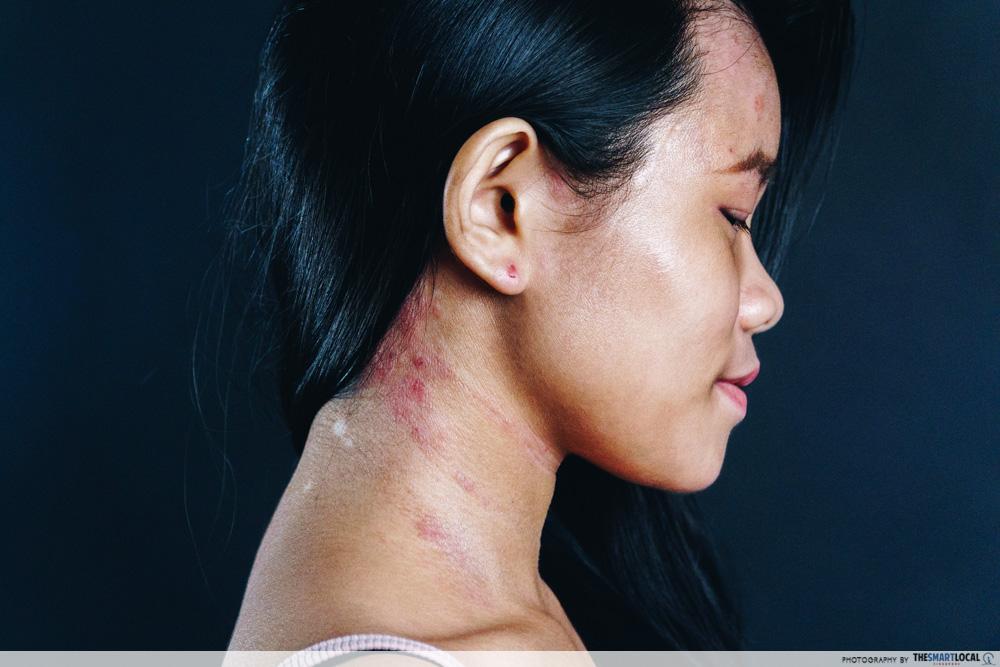 Suu Balm Gladys Eczema neck