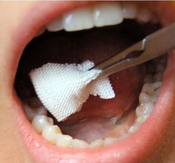 guide to wisdom tooth removal - gauze in mouth to stop bleeding
