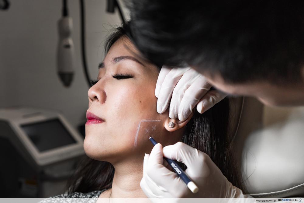 Botox consultation