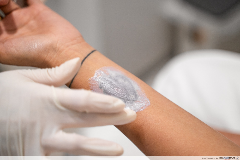 Tattoo removal - numbing cream
