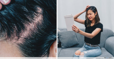 dandruff and itchy scalp problems