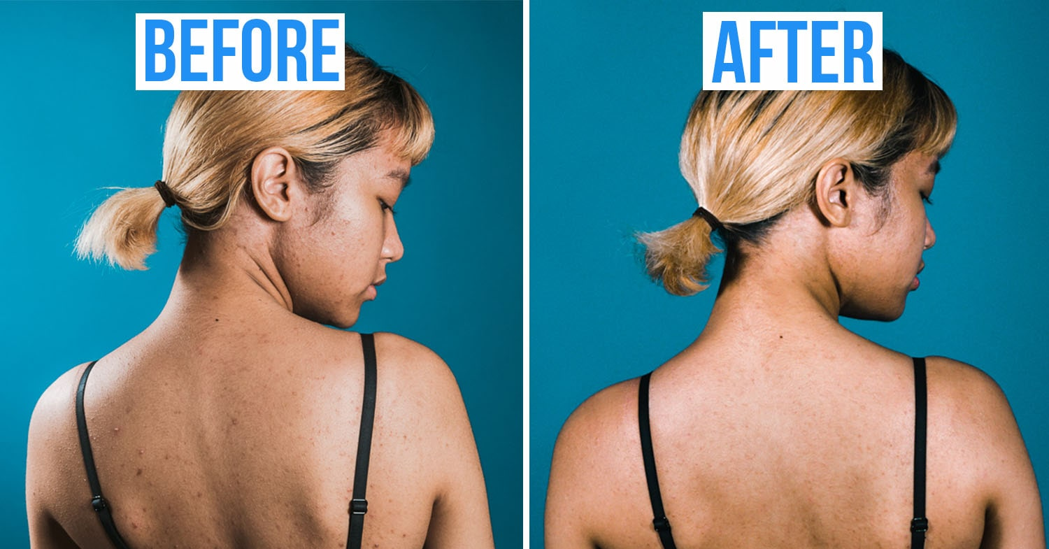 back acne before after acne treatment in Singapore