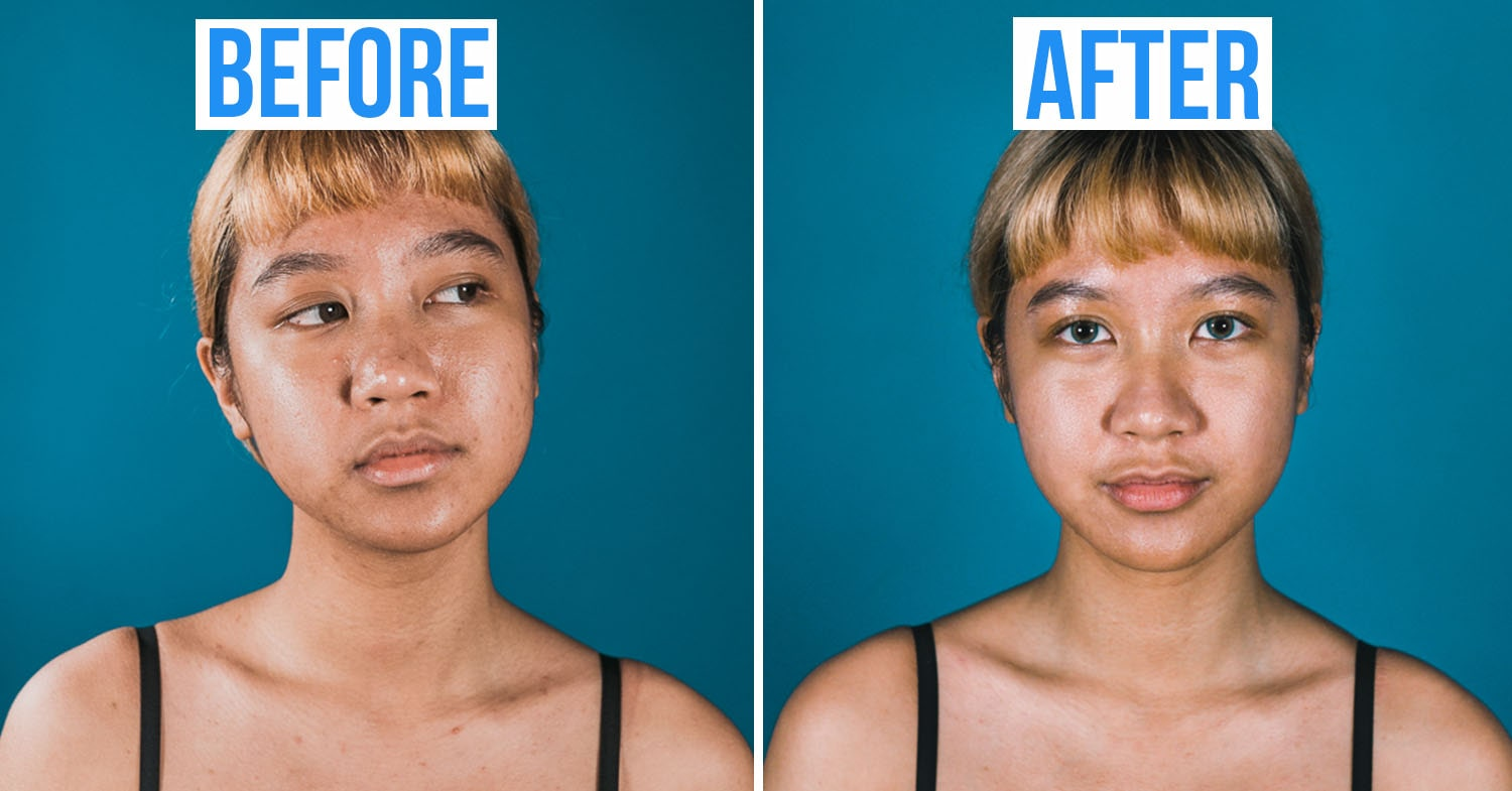 face before after acne treatment in Singapore