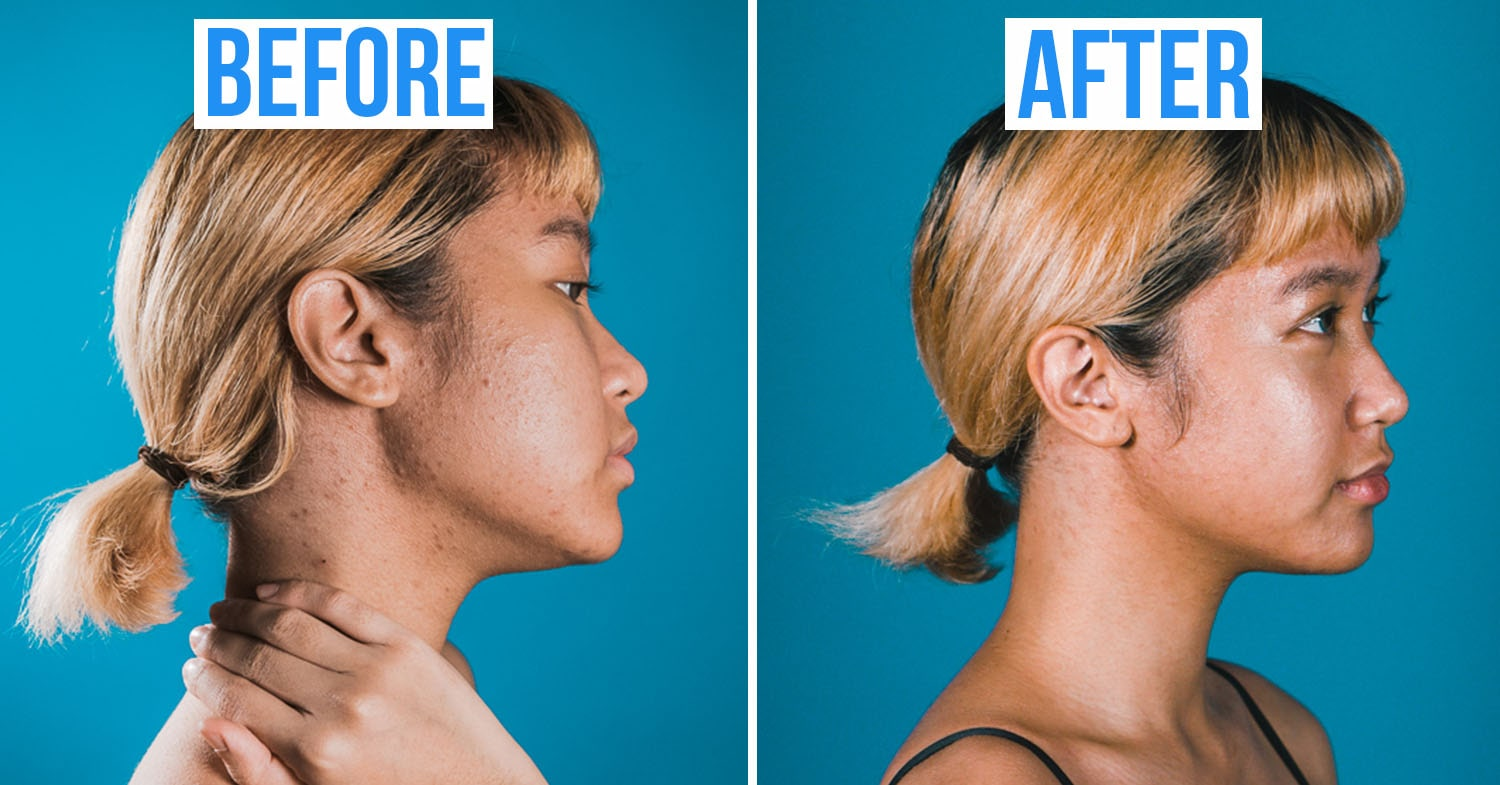 neck jawline before after acne treatment in Singapore