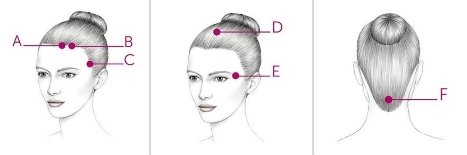 Acupressure Points on the Scalp