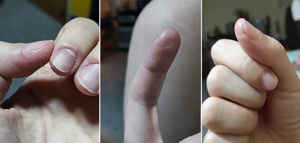 Dermatophagia Skin Peeling Singapore