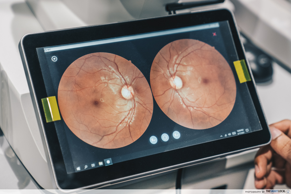 the eye scan derived from fundus photography
