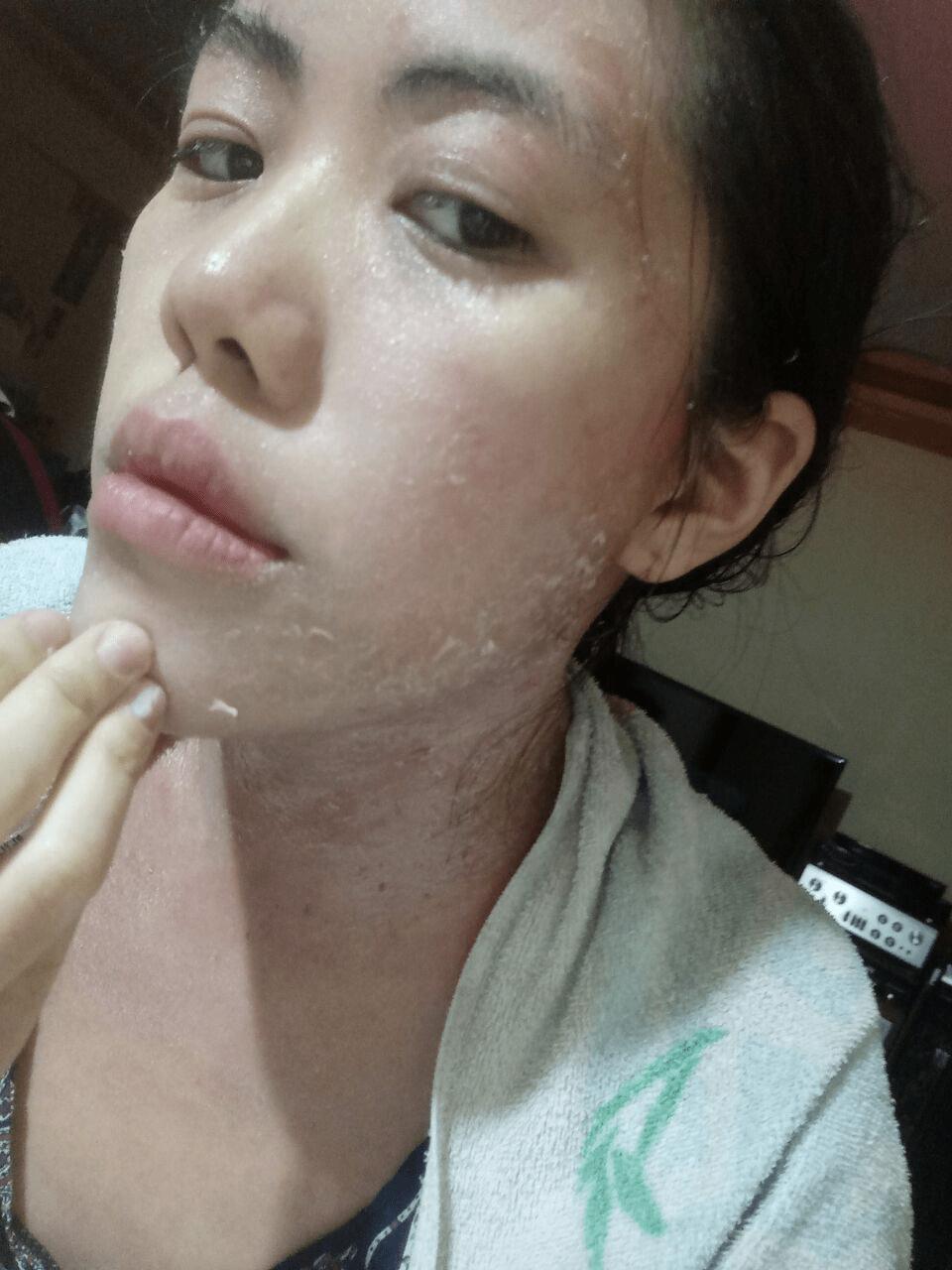 beautiful-scars-stories - eczema scars
