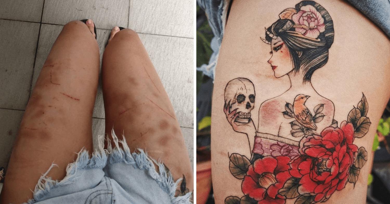 beautiful-scars-stories - self harm scars