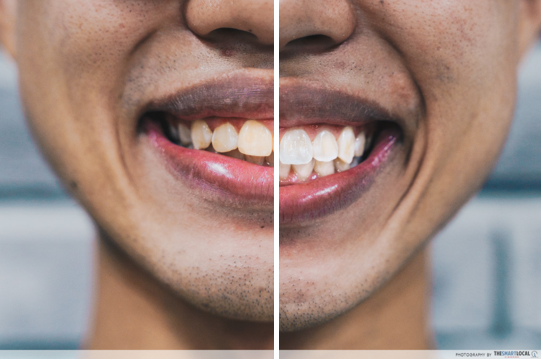 Smart White Colgate Sensitive Pro-Relief before and after