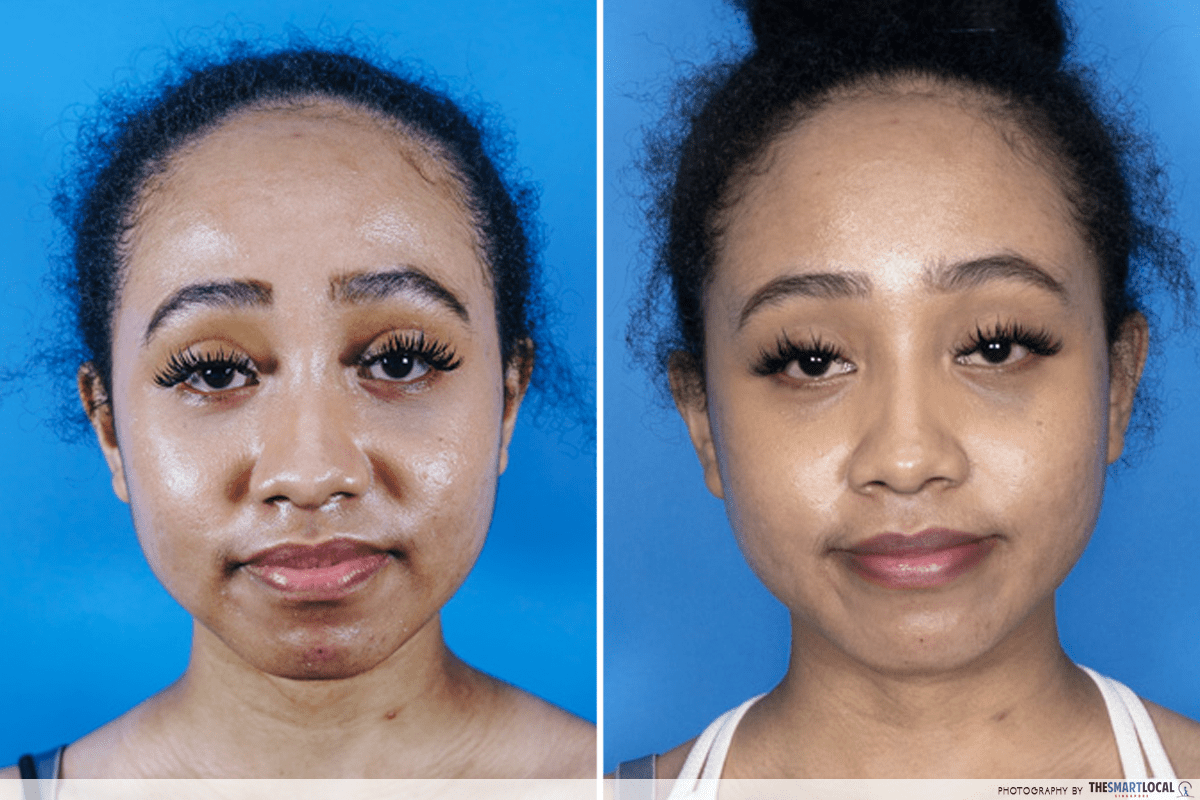 Reducing pimples acne in 7 days