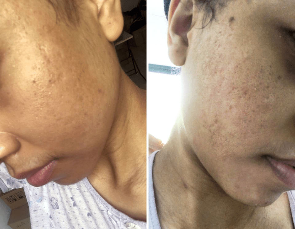 Reducing pimples acne in Singapore