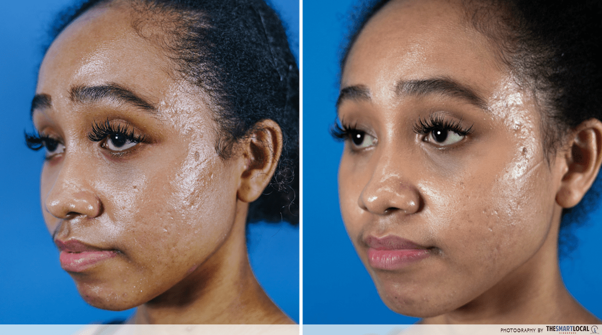 Reducing pimples acne in 1 month