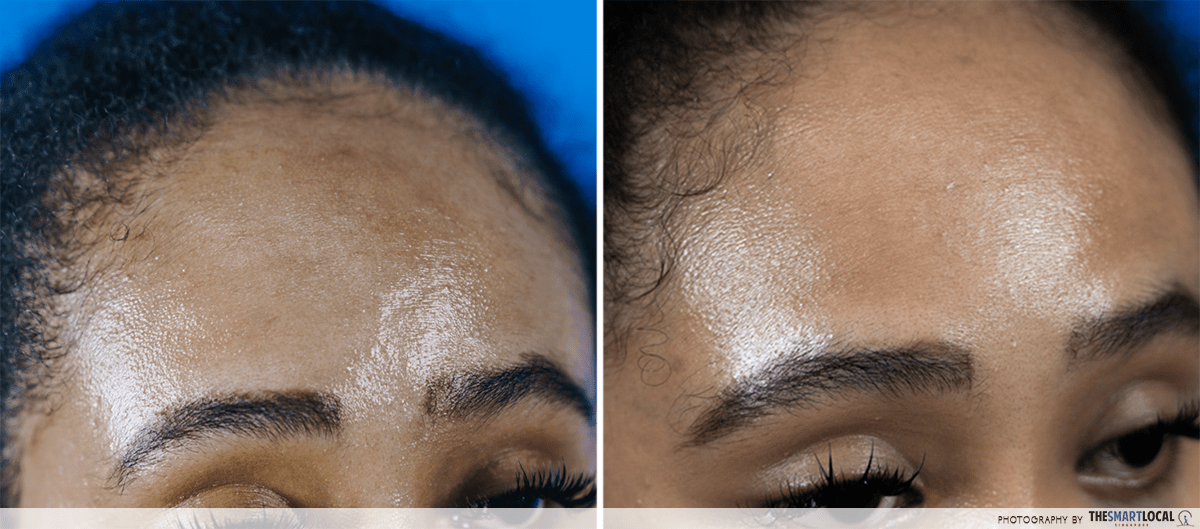 Reducing pimples acne forehead