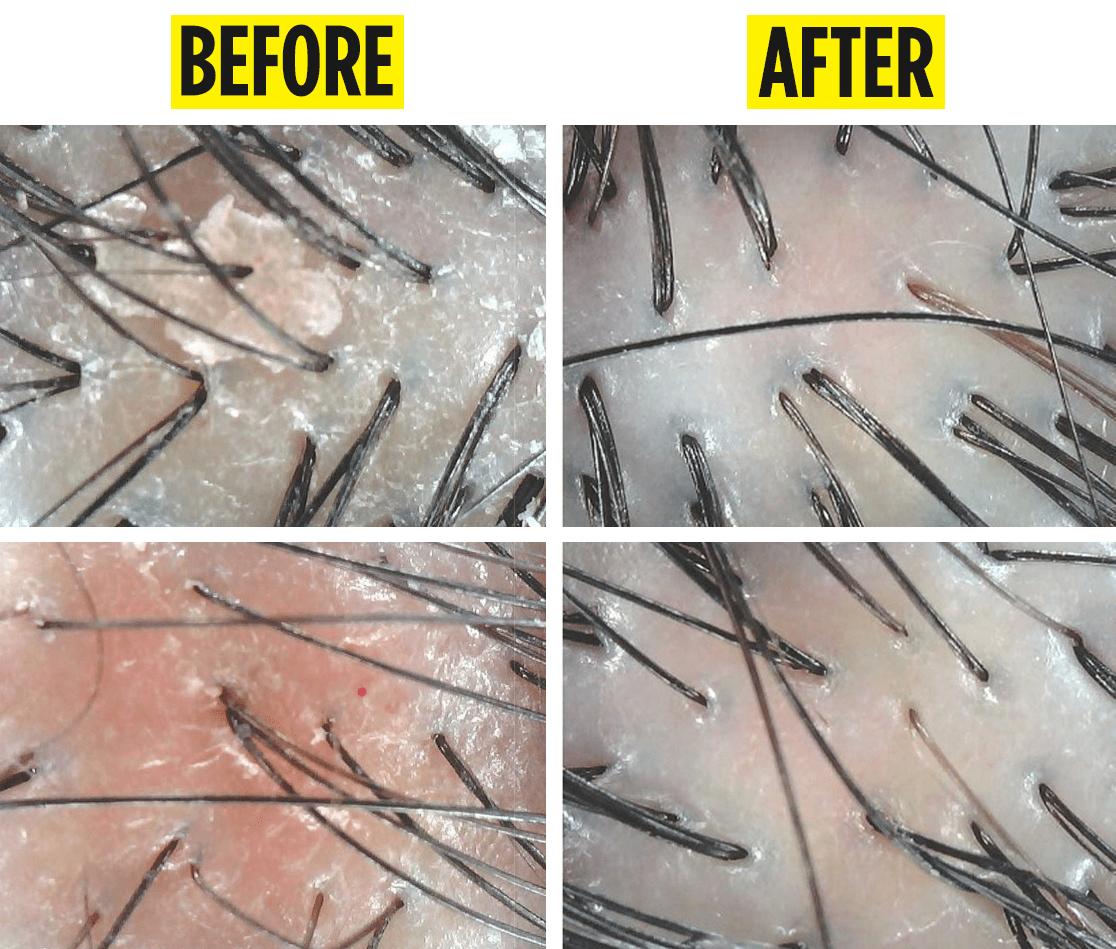 PHS Hairscience dandruff treatment results