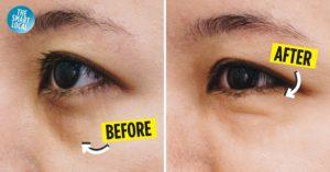 New York Skin Solutions Review Dark Eye Circle Treatment