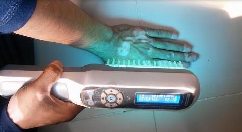 phototherapy-vitiligo