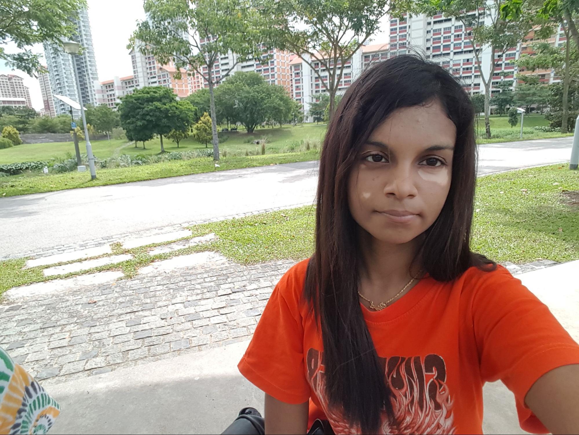 without makeup-vitiligo
