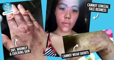 Eczema in Singapore