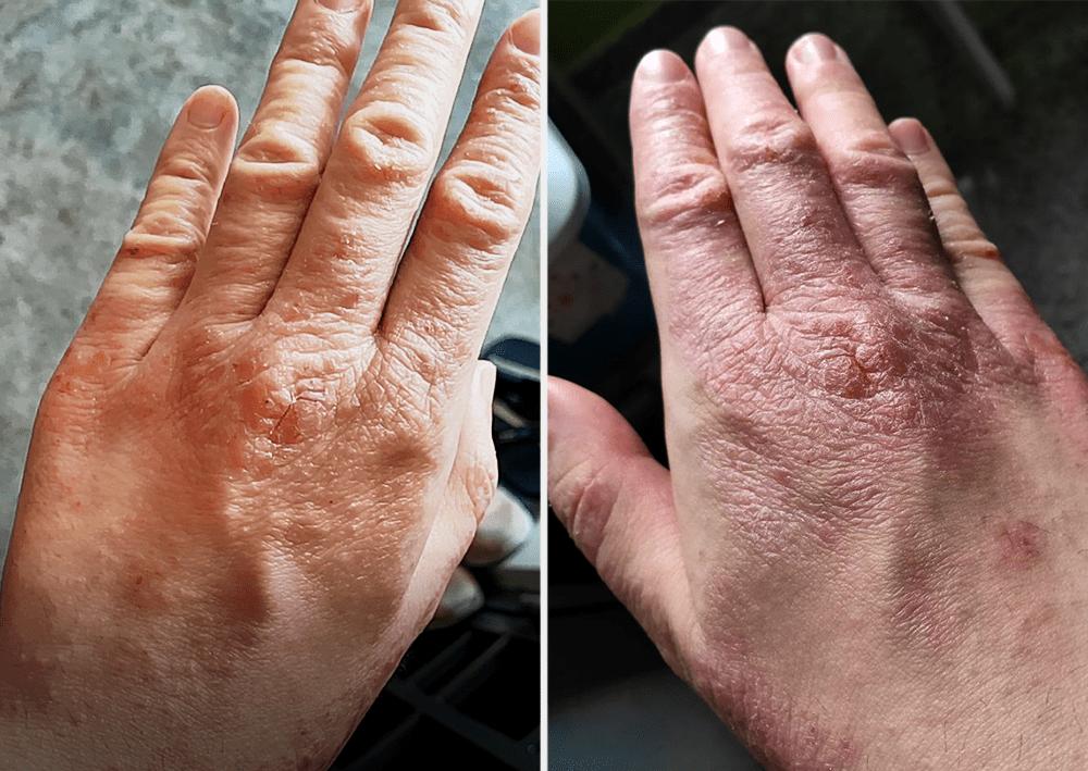 Eczema in Singapore - Hand rashes