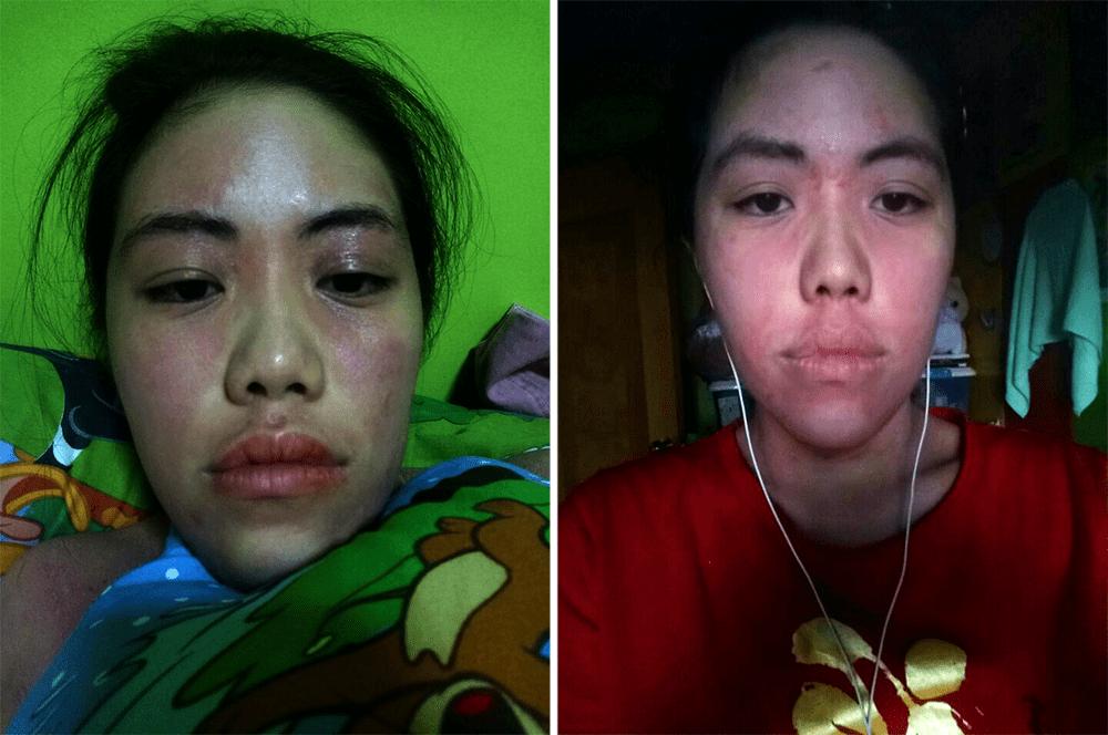 Eczema in Singapore - Bermuda Triangle on Face