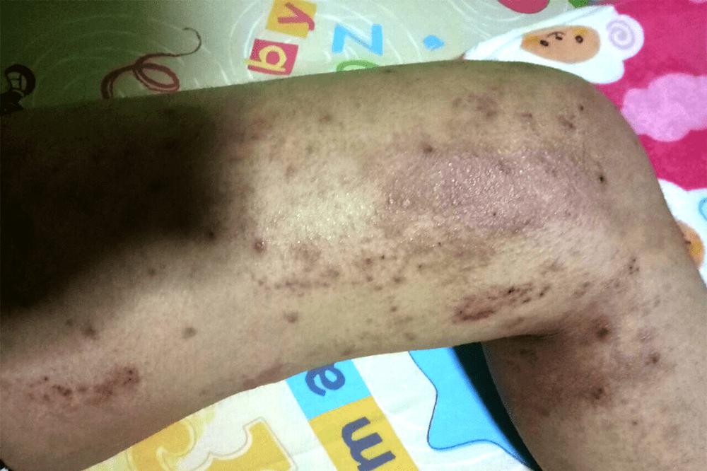 Eczema in Singapore - Leg rashes