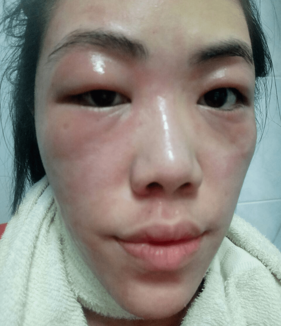 Eczema in Singapore - Swollen and raw wounds