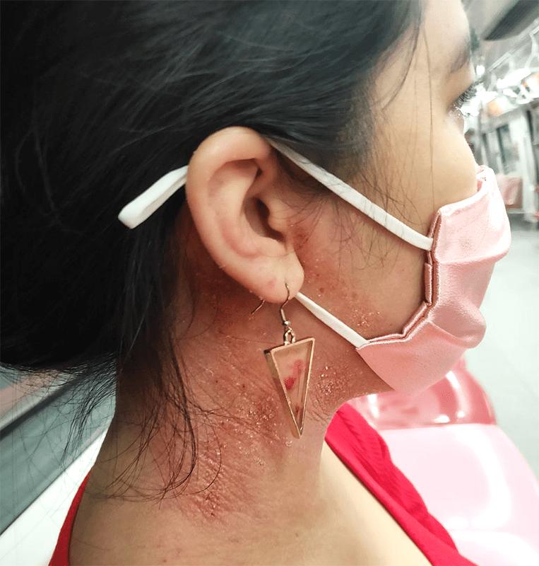 Wearing masks with eczema